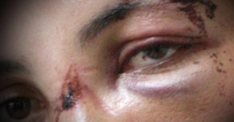 Exclusivo: Manifestantes sofrem sequestro e tortura pela PM em Brasília