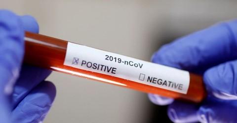 Mais de mil pessoas já se infectaram com coronavírus em São José